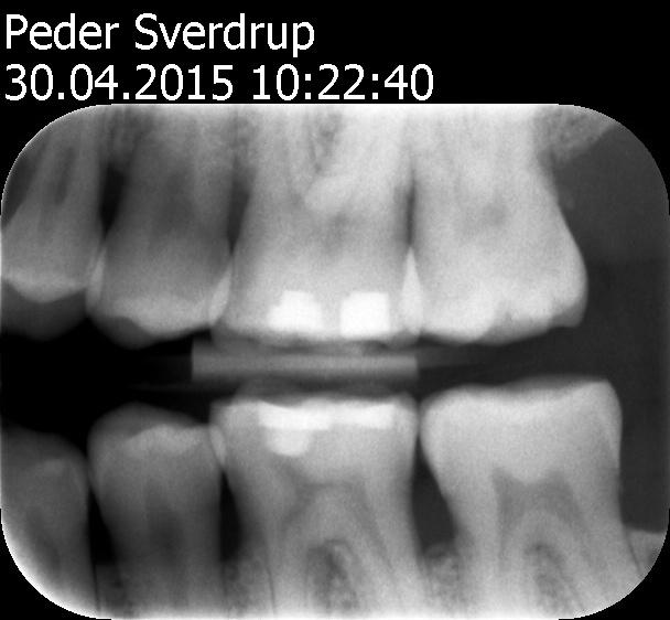 bitewing-2015-04-30 venstre side