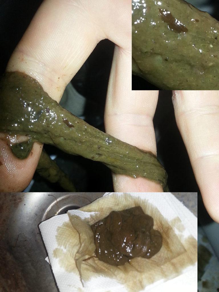 Parasitt/parasittklase som kom ut på første tømming, detalj.
