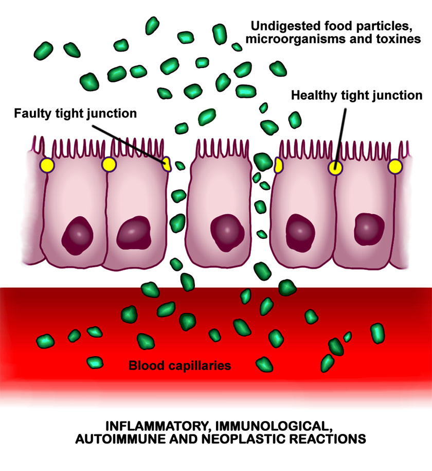 The opening of intercellular tight junctions (increased intestinal permeability) allows uncontrolled passage of substances into the bloodstream, with consequent possible development of autoimmune and inflammatory diseases, infections, allergies or cancers, both intestinal and in other organs of the body. Author: BallenaBlanca. https://en.wikipedia.org/wiki/Intestinal_permeability.