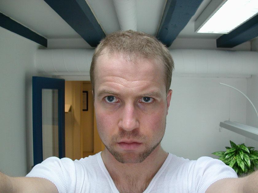 Portrett 1. juli 2007. Her har jeg mistet hår i noen år.