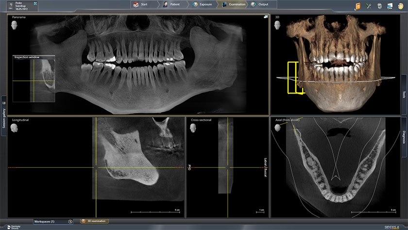 kjeve02-jaw-sirona-screen-2018-11-12