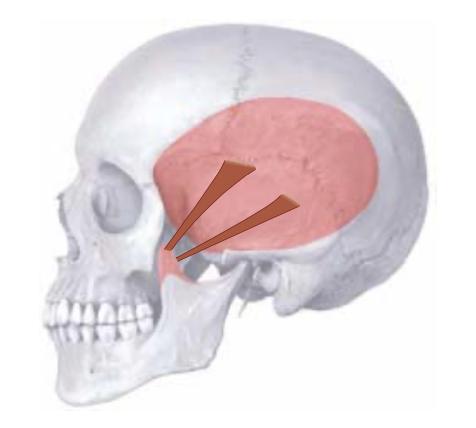 Kjeven temporalis muskelen