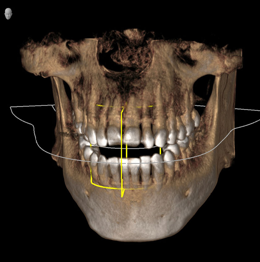 mandible01-front-jaw-kjeve-peder-2018-11-12-ct-scan
