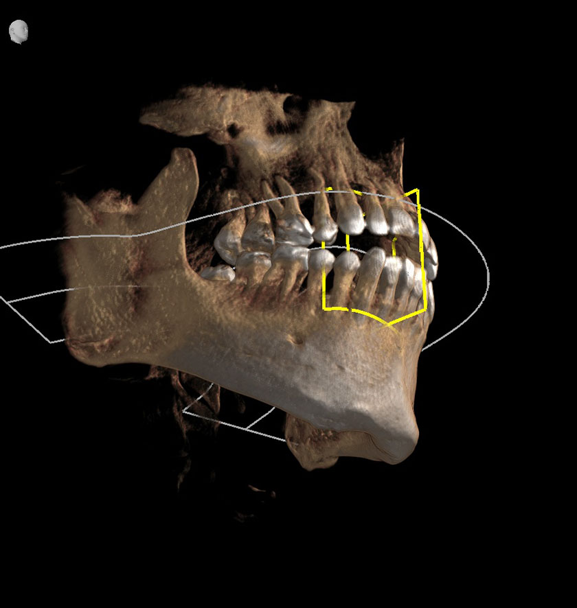 mandible03-right-jaw-coronoid-process-of-mandible-kjeve-peder-2018-11-12-ct-scan