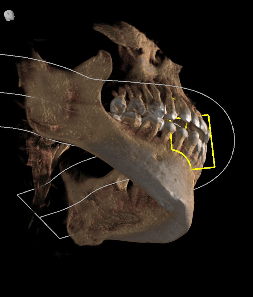 mandible04-right-jaw-coronoid-process-of-mandible-tmj-not-fully-visible-kjeve-peder-2018-11-12-ct-scan