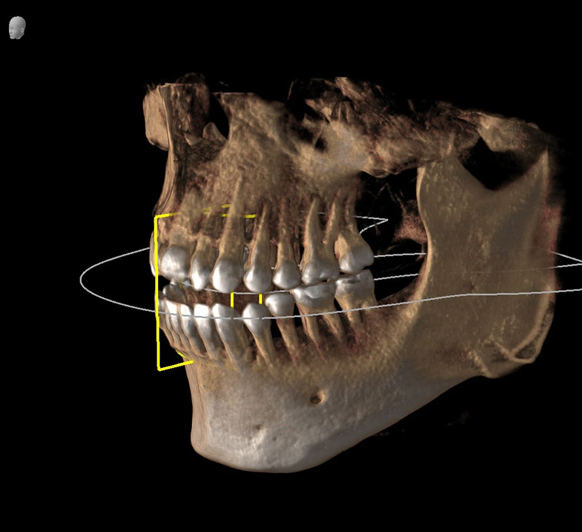 mandible06-left-jaw-mental-foramen-nerve-opening-kjeve-peder-2018-11-12-ct-scan