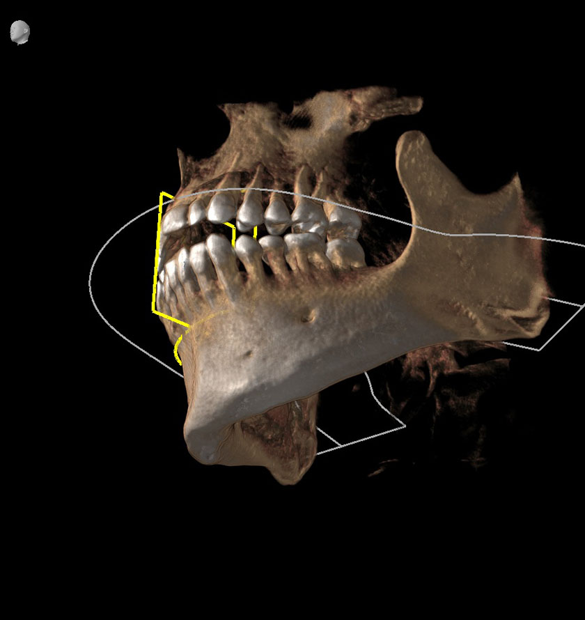 mandible07-left-jaw-coronoid-process-of-mandible-kjeve-peder-2018-11-12-ct-scan