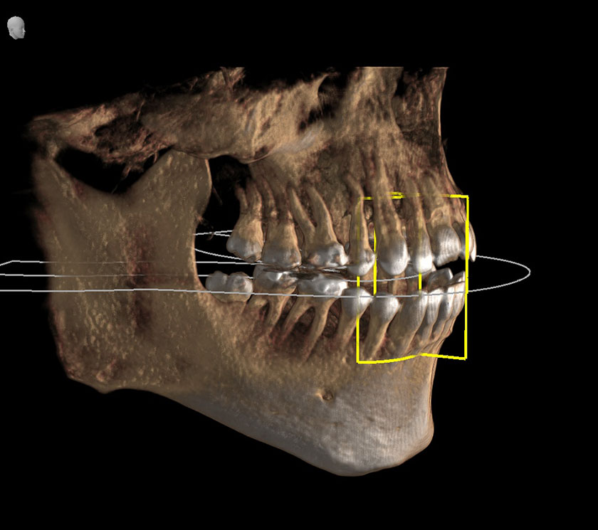 mandible09-right-jaw-temporomandibular-joint-not-fully-visible-kjeve-peder-2018-11-12-ct-scan