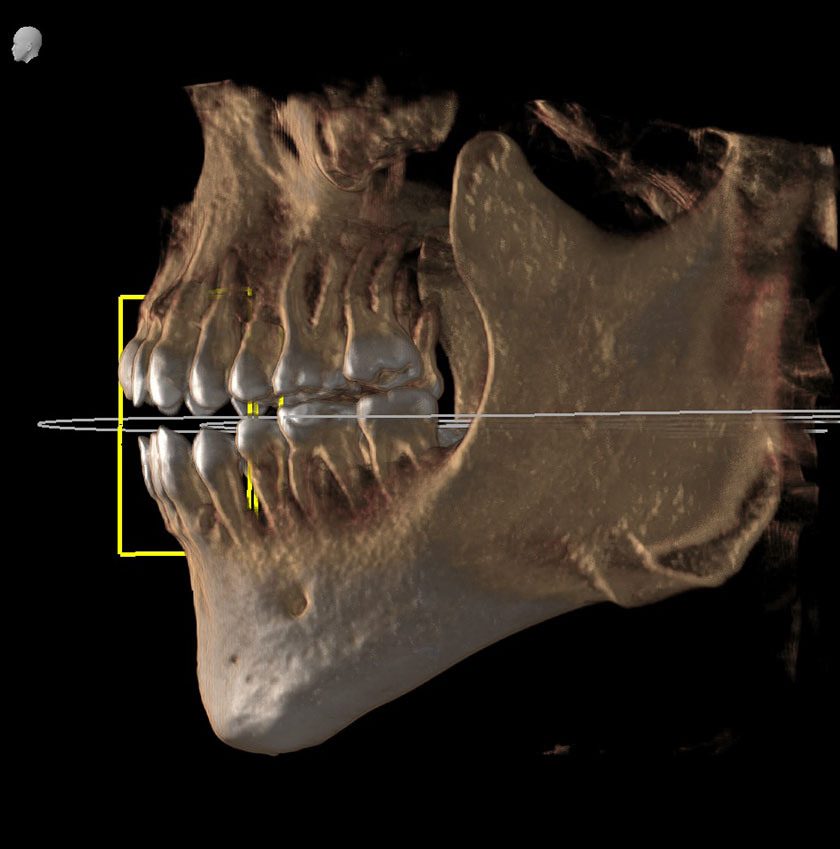 mandible11-left-jaw-kjeve-peder-2018-11-12-ct-scan