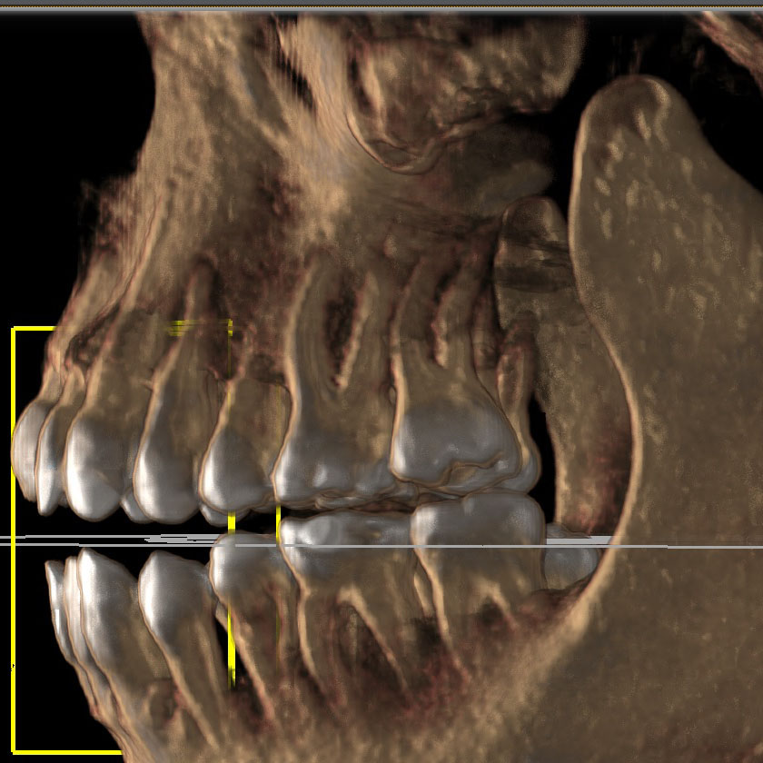 mandible12-left-jaw-detail-kjeve-peder-2018-11-12-ct-scan