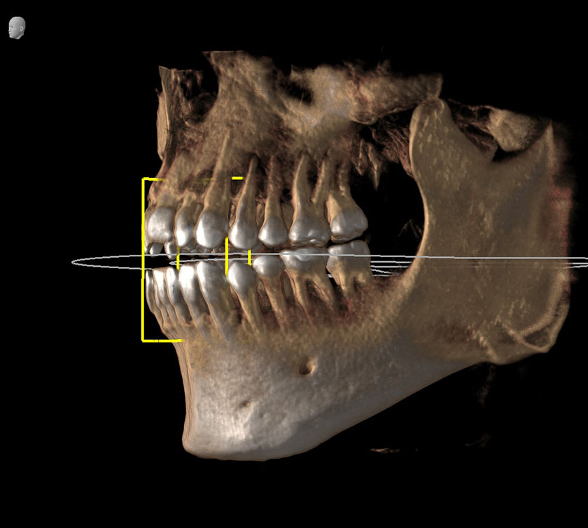 mandible16-right-mental-foramen-nerve-and-bloodvessel-opening-kjeve-peder-2018-11-12-ct-scan