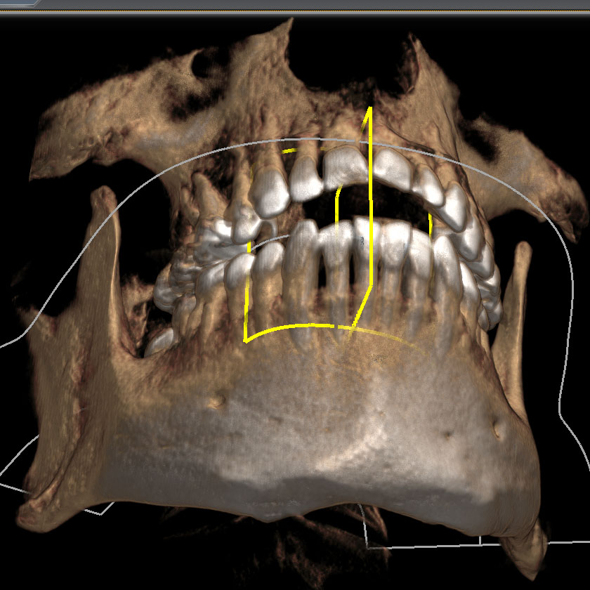 mandible17-right-below-double-coronoid-process-of-mandible-kjeve-peder-2018-11-12-ct-scan