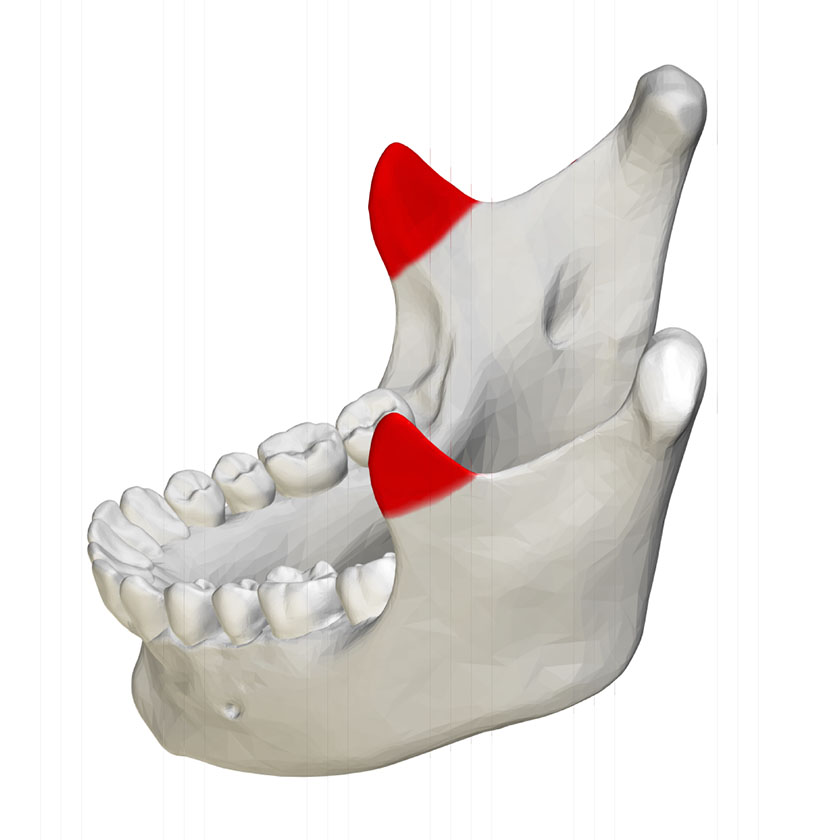 mandible19-coronoid-process-of-mandible-close-up-lateral-view-02
