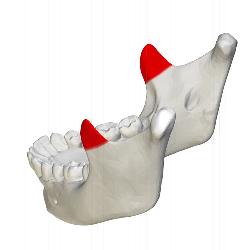 mandible20-coronoid-process-of-mandible-close-up-lateral-view-03