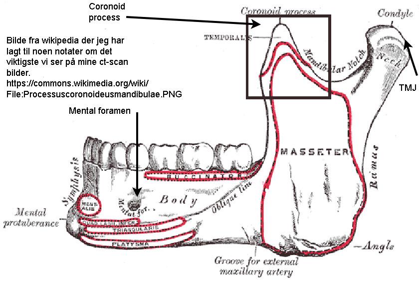 mandible23-coronoid-process-coronoide-mandibulae
