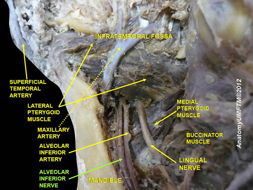 mandible28-inferior-alveolar-nerve-inferior-slide9dddd
