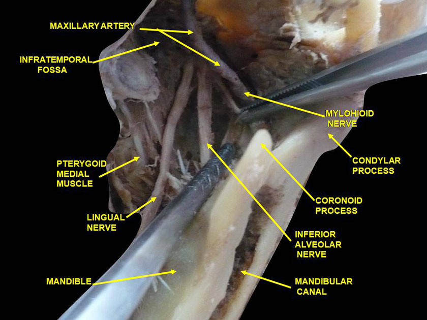 mandible29-infratemporal-fossa-lingual-and-inferior-alveolar-nerve-deep-dissection-anterolateral-view-inferioer-slide7cece