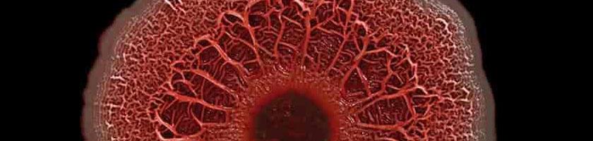 Biofilm, infeksjoner og antikoaguleringsterapi