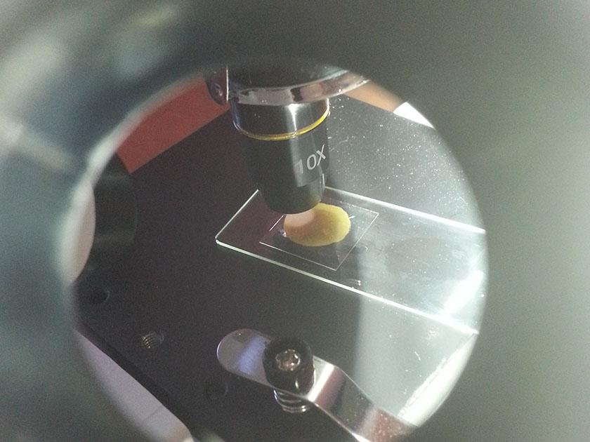 Avføringsprøve på mikroskopet