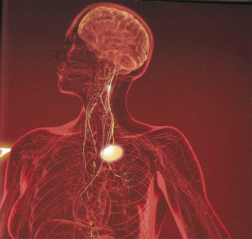 hjernen101-pic01-vagusnerven-kunstig-stimulering