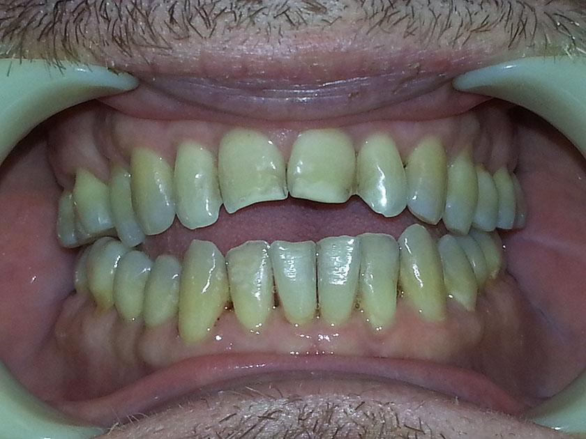 bittendring-tannendring-over-3-aar-02-tannlegehermansen-2021-10-04-bitt-tenner-forfra-etter-pussing-20211004_092802