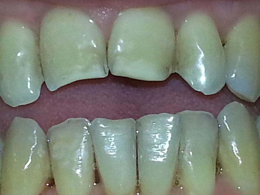 bittendring-tannendring-over-3-aar-04-tannlegehermansen-2021-10-04-bitt-tenner-forfra-detalj-etter-pussing-20211004_092802detalj