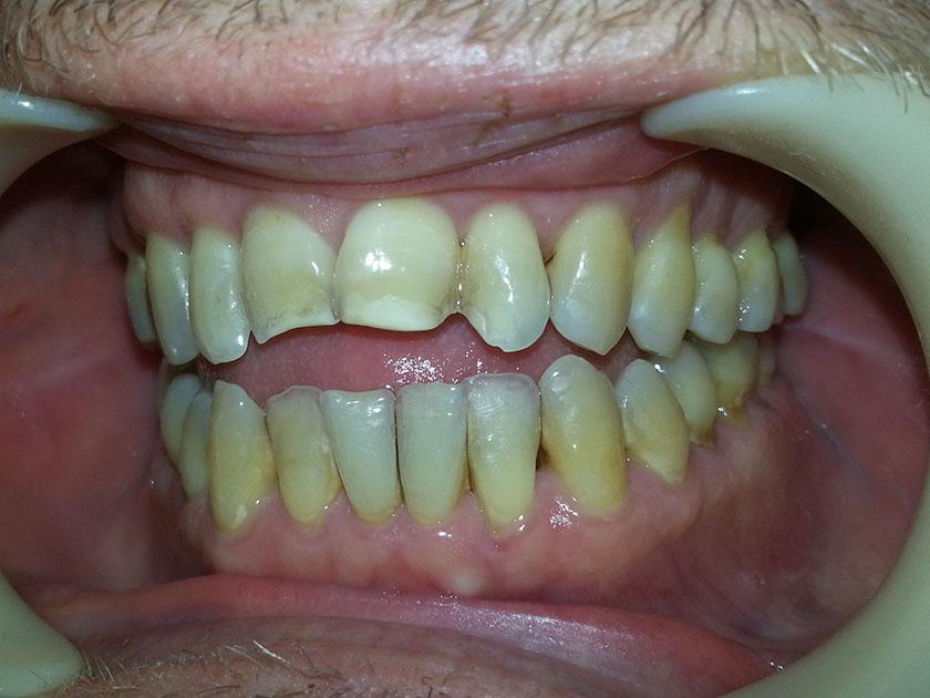 bittendring-tannendring-over-3-aar-06-tannlegehermansen-2021-10-04-bitt-tenner-venstre-foer-puss-20211004_090740