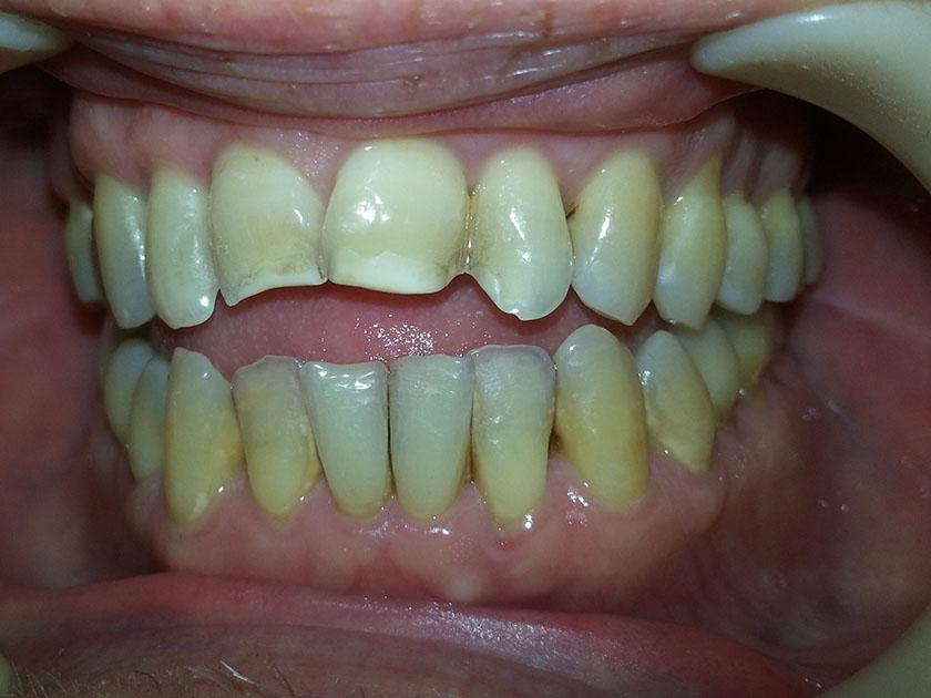 bittendring-tannendring-over-3-aar-15-tannlegehermansen-2021-10-04-bitt-tenner-forfra-foer-pussing-tannsten-20211004_090748